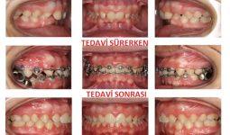 Ortodonti sınıf 2 tedavisi